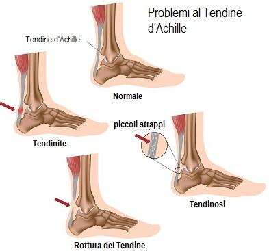 Achille tendinosi osteopatia