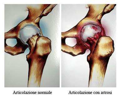 antiossidanti artrosi