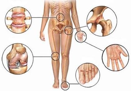 artrite anca ginocchio