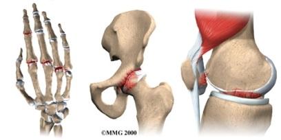 artrite articolare osteopatia