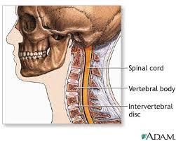 cervicale mal di testa osteopatia