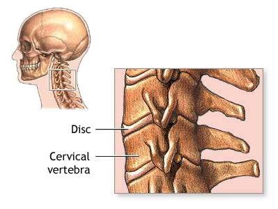 cervicale osteopatia 2