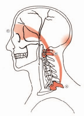 Perché il muscolo ferisce su un dorso una pala