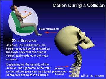 colpo di frusta cervicale osteopatia