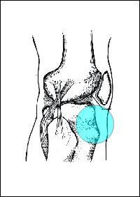 condropatia rotulea osteopatia