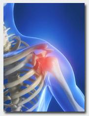 cuffia dei rotatori osteopatia