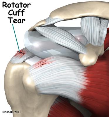cuffia rotatori strappo osteopatia