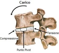 disco intervertebrale rachide