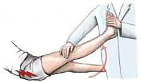 ernia lombare osteopatia