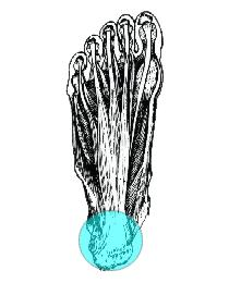 fascite plantare osteopatia
