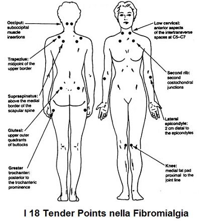 fibromialgia tender points