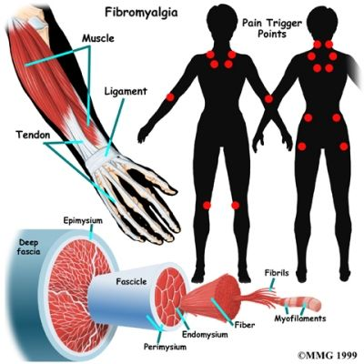 fibromialgia trigger points