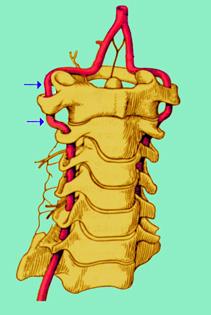 insufficienza vertebrobasilare arteria