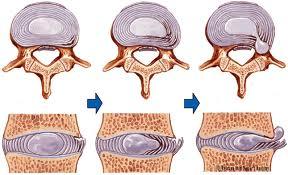 lombalgia ernia disco