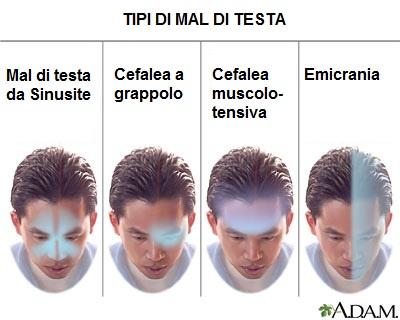 Mal di testa osteopata a roma nord for Mal di testa da cervicale quanto puo durare