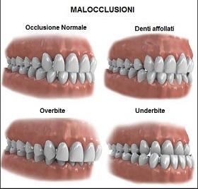 malocclusione morso bite 1