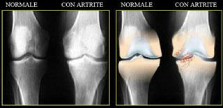 osteopatia artrite