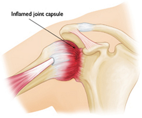osteopatia frozen shoulder 1