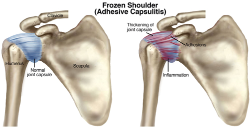 osteopatia frozen shoulder