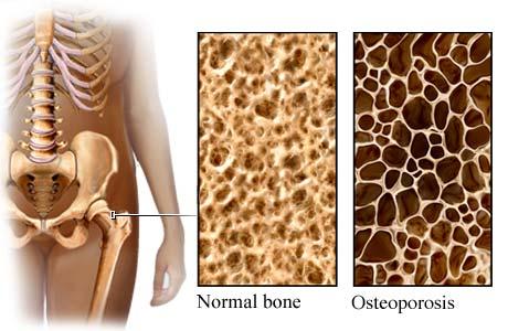 osteopatia osteoporosi