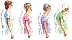 osteopatia postura osteoporosi
