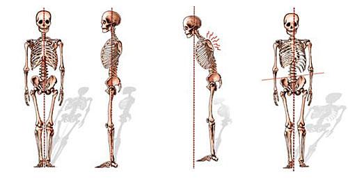osteopatia postura scorretta