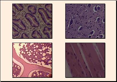 osteopatia tessuto connettivo