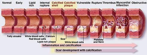 osteoporosi calcio