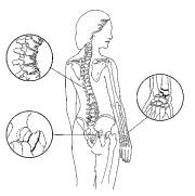 paradosso calcio osteoporosi