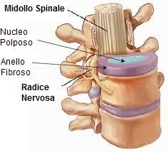rachide disco intervertebrale