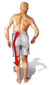 sciatica ernia discale osteopatia