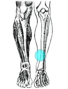 shin splints osteopatia medio-tibiale