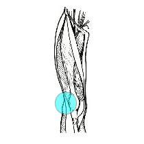sindrome banda ileotibiale osteopatia