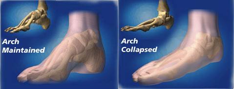 sindrome benderella ileotibiale postura