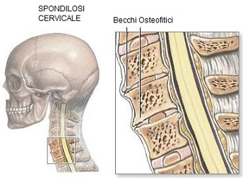 spondilosi cervicale osteopatia artrite