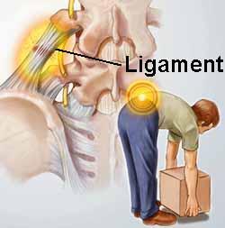 sprain strain legamento osteopatia