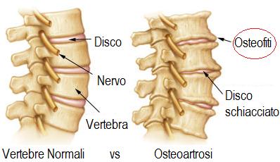 sprain strain osteofiti osteopatia