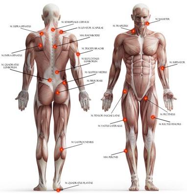 sprain strain trigger point osteopatia