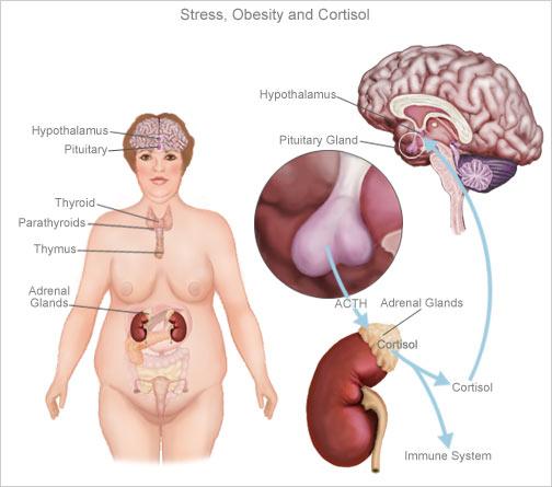 stress obesita cortisolo