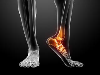 trattamento caviglia piede