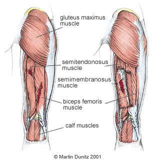 trauma hamstring osteopatia