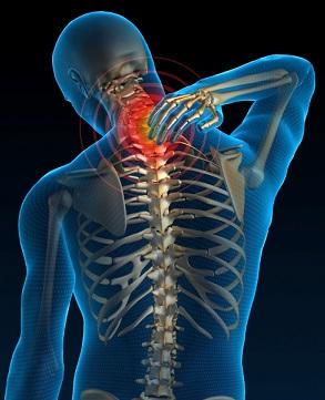osteopatia-cervicalgia
