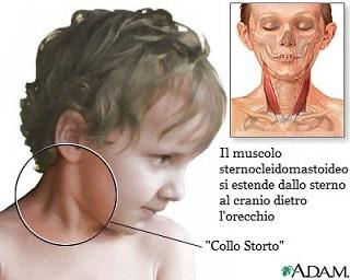 Losteochondrosis si ferisce un dorso e un petto