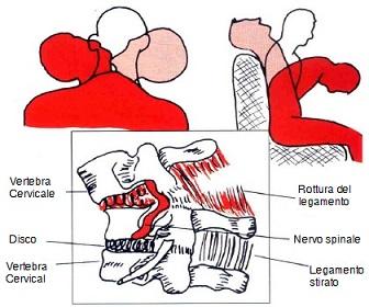 osteopatia-colpo-di-frusta