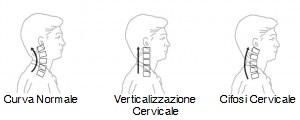 osteopatia-curva-cervicale