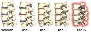 osteopatia-e-degenerazione-discale