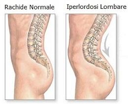 osteopatia-iperlordosi