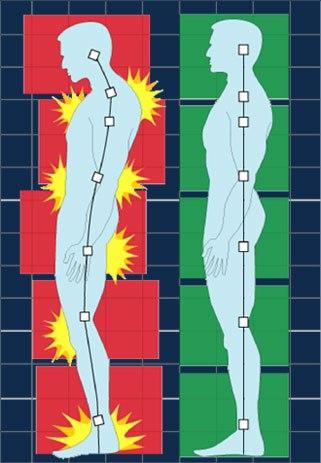osteopatia-postura-corretta