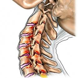 osteopatia-spondilosi