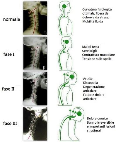 Verticalizzazione del rachide cervicale for Mal di testa da cervicale quanto puo durare